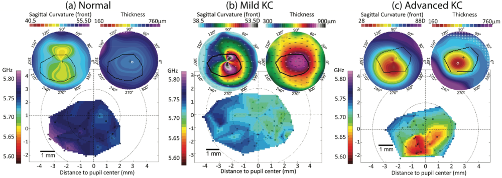 Biomechanics and Morphology. (a) Normal subjects. (b) Mild Keratoconus, (c) Advanced Keratoconus.  All: Top images are pachymetry (thickness) and topography (elevation and steepness) images recorded with the Oculus Pentacam; Below are measurements of BOSS™ stiffness with morphologically-matched regions of interest.