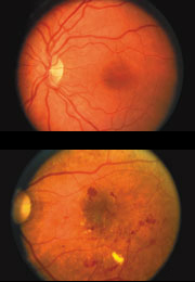 1) A normal retina. 2)A retina showing signs of diabetic retinopathy.