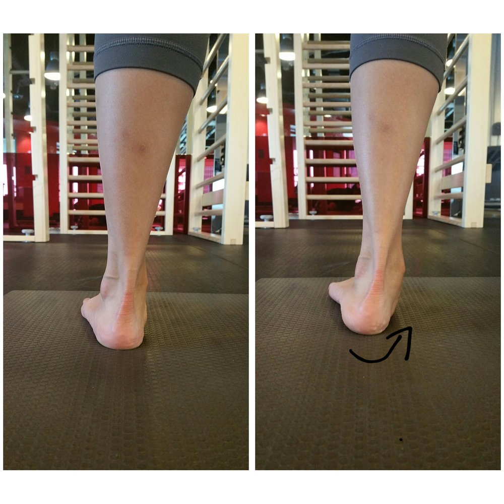 (i) Ankles- when you walk do your feet cave inward i.e. towards your big toes, resulting in knees turning inward?