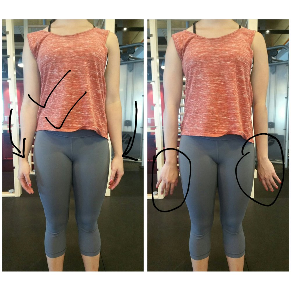 (iv) Shoulders – Rounded shoulders are particularly common. A simple way to check is to see if your palms face backwards instead of to your body when you stand with your hands by your side. Shoulders can also be unlevelled i.e. tightness in one shoulder as compared to the other.