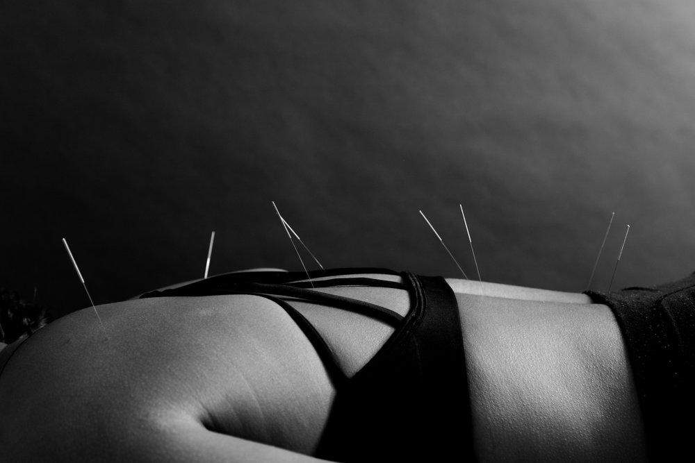 CarlyGaebe_MichaelKabram_Acupuncture-CarlyGaebe_MichaelKabram_Acupuncture-Brooklyn-Cupping-massage-yoga-back pain-pain-neckpain-dancer-parkslope-wellness55.jpg