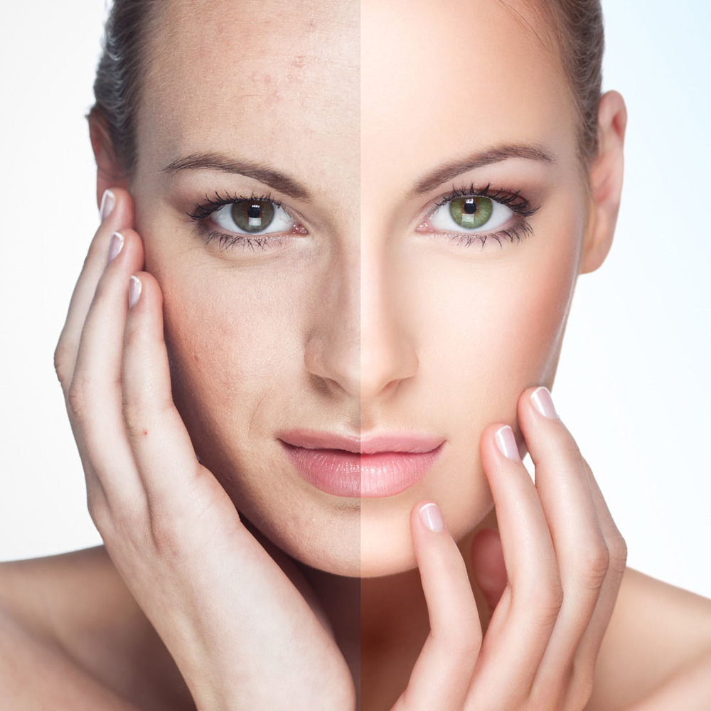 Verso-Surgery-Centre-ipl-photofacial.jpg