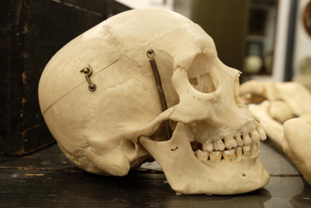 Real Edwardian Human Skeleton Cunningham Whites