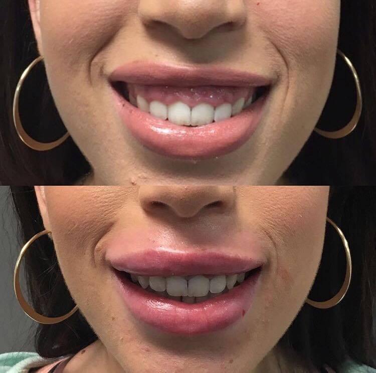gummy smile 1.jpg