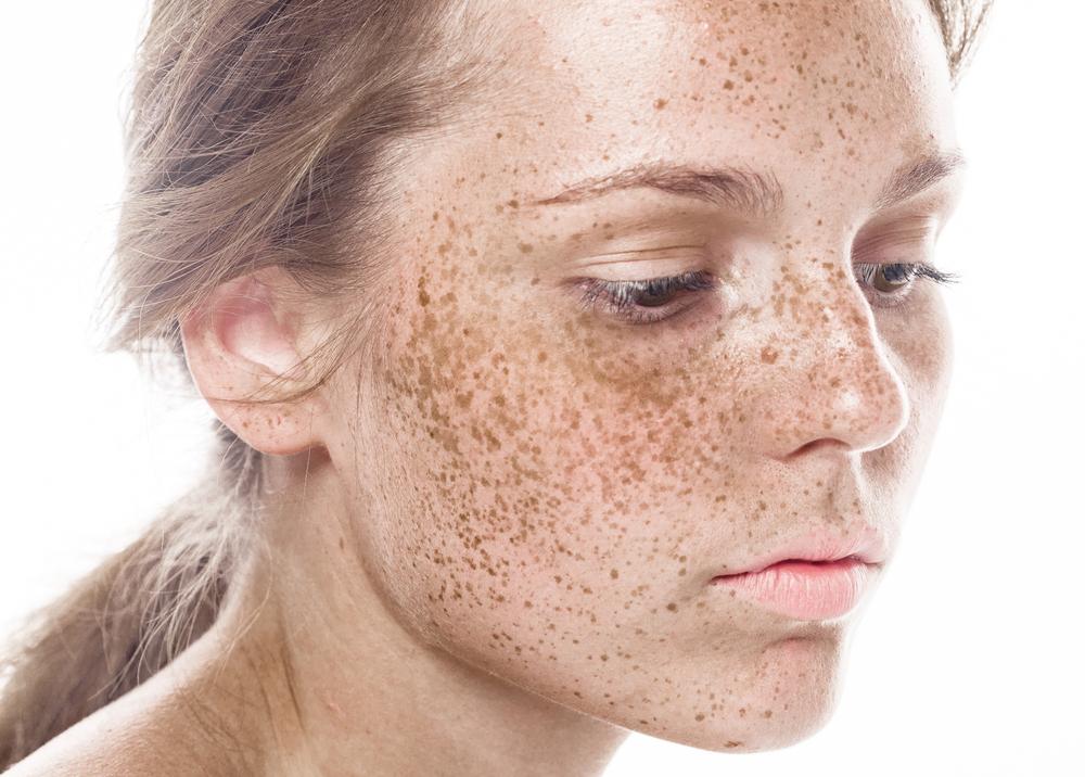 freckles_346392299.jpg
