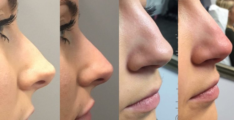 Image result for Nose Fillers