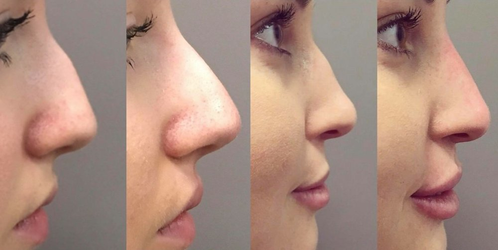 2018-rhinoplasty-non-surgical-before-after-2.jpg
