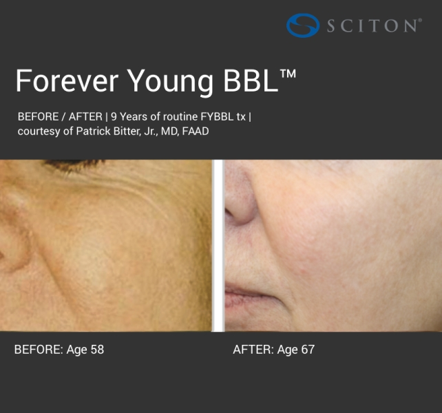 BBL - dark forever young before and after 1.jpg