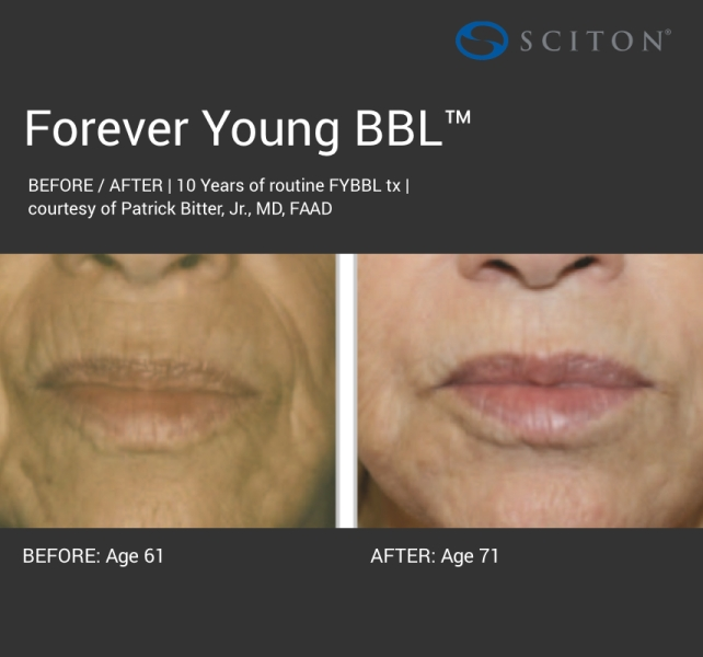 BBL - dark forever young before and after 2.jpg