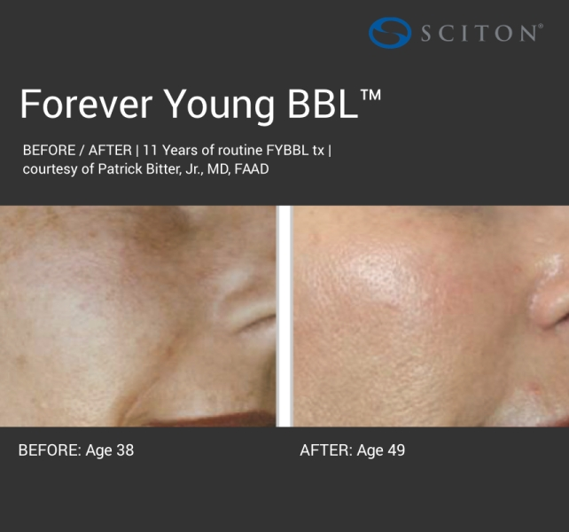 BBL - dark forever young before and after 3.jpg