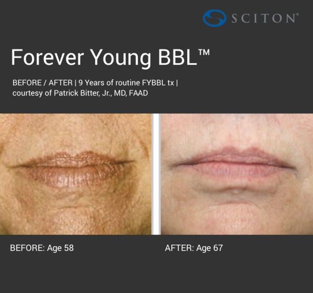 BBL - dark forever young before and after 6.jpg