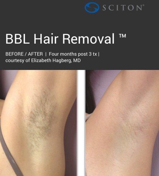 BBL - dark hair removal before and after 1.jpg