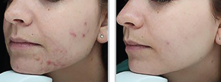 BEFORE / AFTER | 2 months post BBL 3 tx | courtesy of Stephen P. Beals, MD