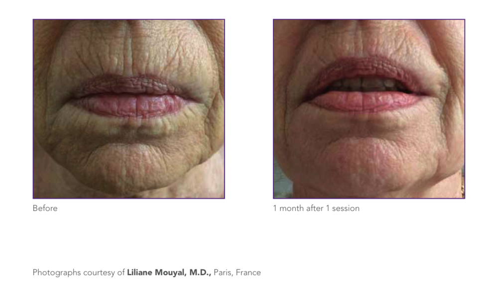 wrinkle reduction 1.png