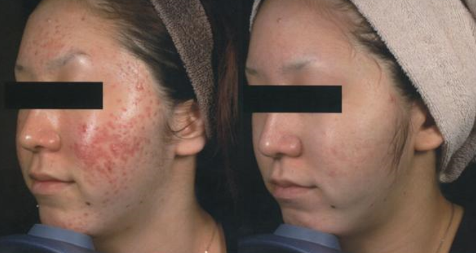 Acne Treated with RF Fractional Skin Resurfacing (FSR)