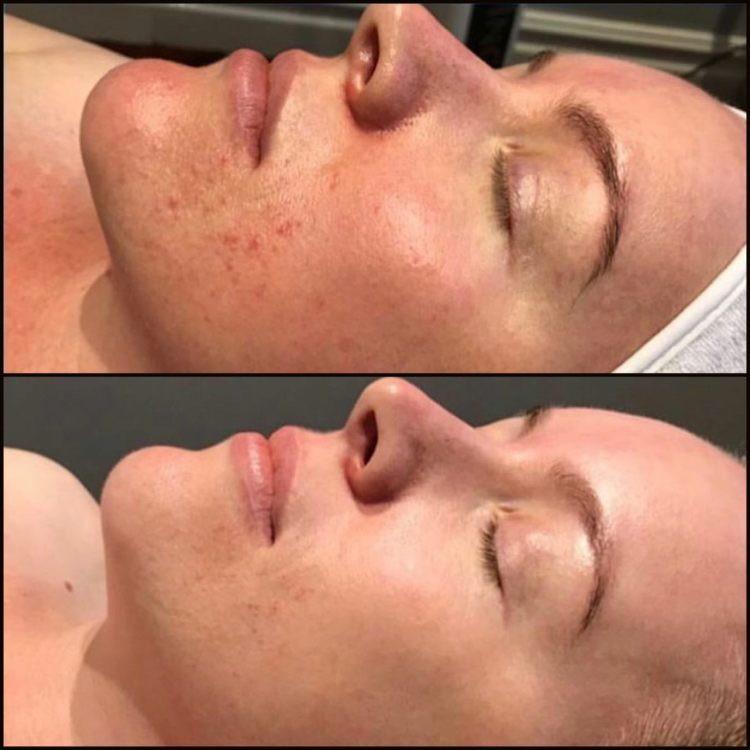BBL Targeting Rosacea and Redness