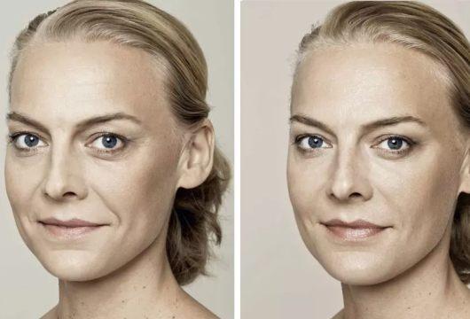 Skin booster B and A 1.jpg