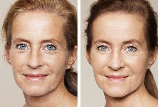 Skin booster B and A 3.jpg