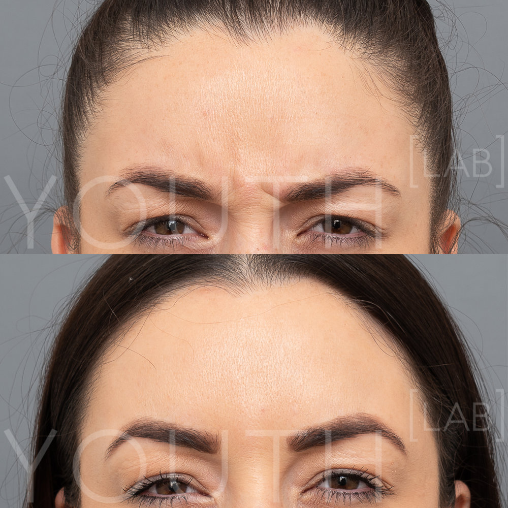 TASH K - anti-wrinkle Frown B&A.jpg