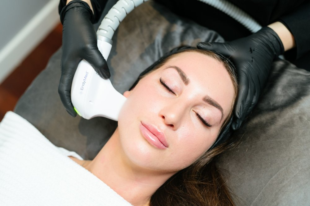 RF Skin Tightening on female