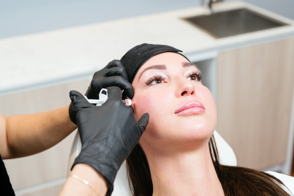 cheek filler injection by Dr Kate