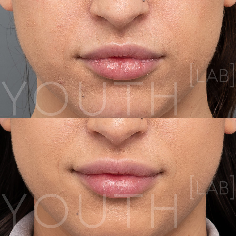 YL - Lips B&A 0.5ml.jpg