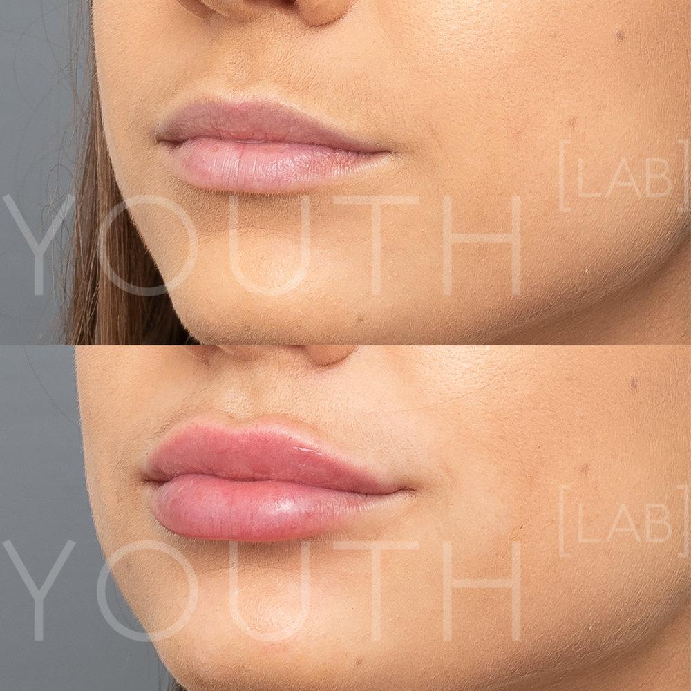 YL lips B&A 4.jpg