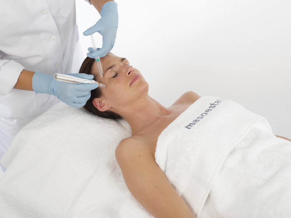 Infuse Meso Solution - Utilising advanced micro needling to open pores, we then infuse Mesotherapy solution.