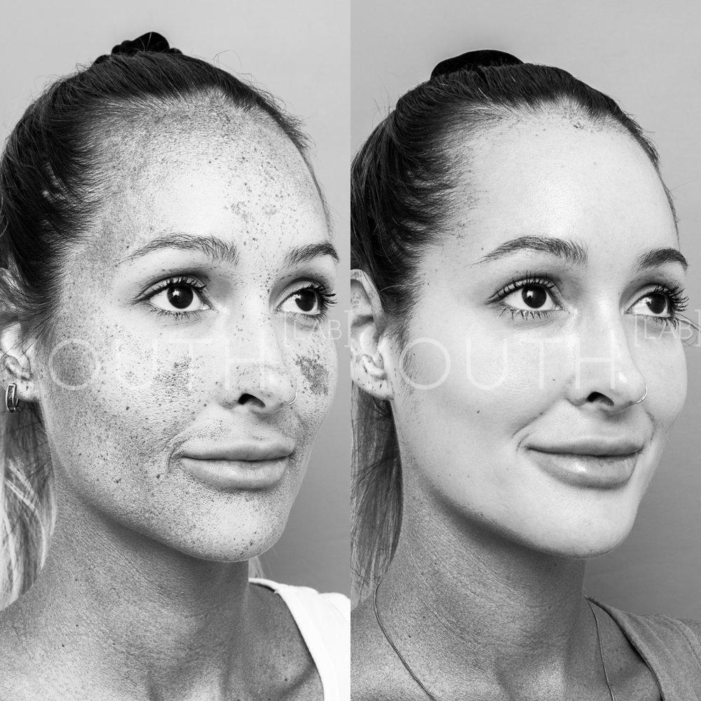 Dermamelan Before and After Result
