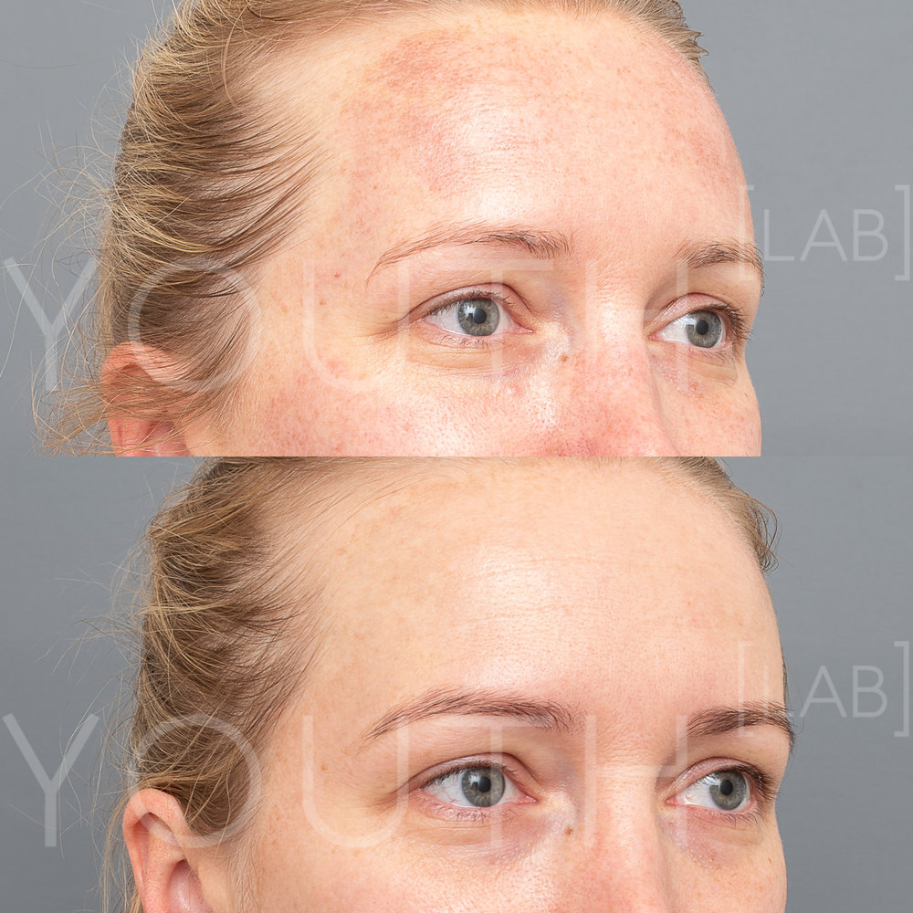 Treatment:  1 x BBL Photorejuvenation  Targeting:  Redness & Pigment   Photo Filter:  No Filter  Result:  Reduced pigment and reduced redness, improving overall skin tone and condition