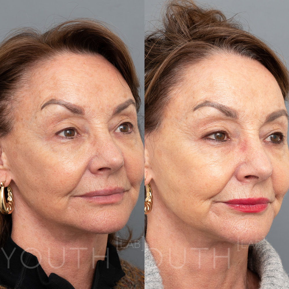 Treatment:  1 x BBL Photorejuvenation  Targeting:  Sun Damage  Photo Filter:  No Filter  Result:  Reduction in sun damage, resulting in lighter, smoother skin tone with improved plumpness and skin laxity