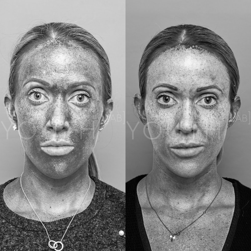 Treatment:  2 x BBL Photorejuvenation  Targeting:  Sun Damage & Pigment   Photo Filter:  Melanin Filter  Result:  Strong reduction in deep pigmentation and sun damage resulting in smoother skin tone