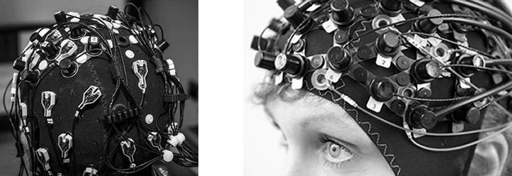 Modern EEG cap.