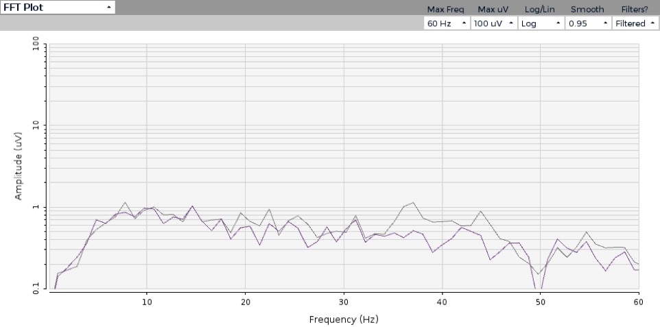 EEG measure under normal conditions. Shout out to OpenBCI for the test platform and GUI!