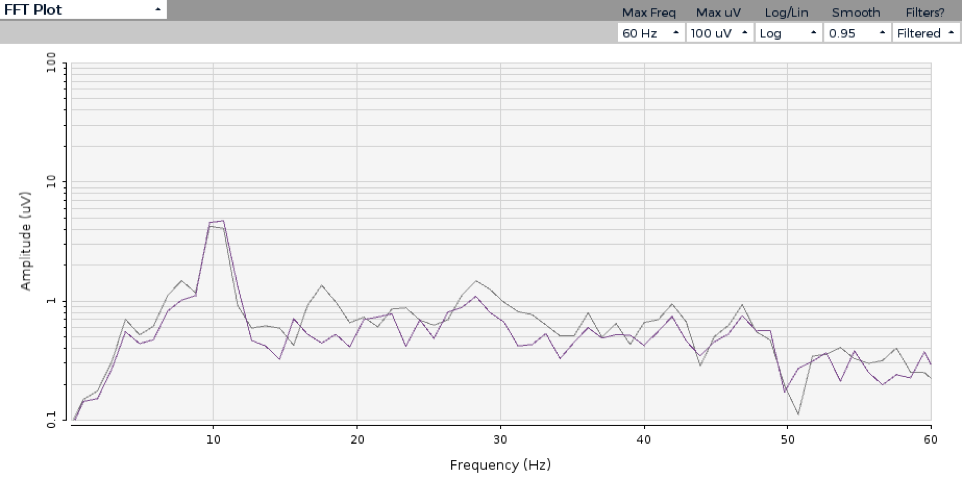 EEG measure during SSVEP. Notice the sharp spike at 10Hz.