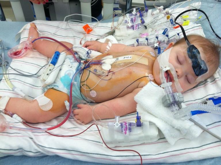 Ellie after open-heart surgery