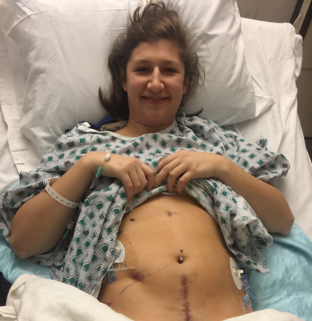 Kirsten, showing off her incision four hours after surgery.