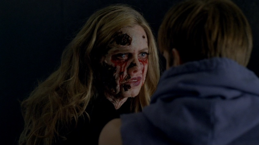 True Blood (Pam disfigured by Marnie).jpg