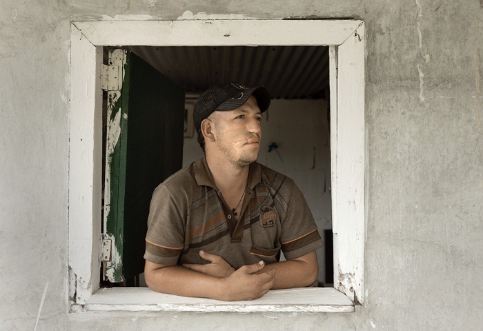 Photographer Stephen Petegorsky has documented the Polus Center's work for twenty years. His images take us to Nicaragua, Colombia, and the Democratic Republic of the Congo following our rehabilitation efforts with injured coffee farmers struggling to survive in the aftermath of war and civil unrest.