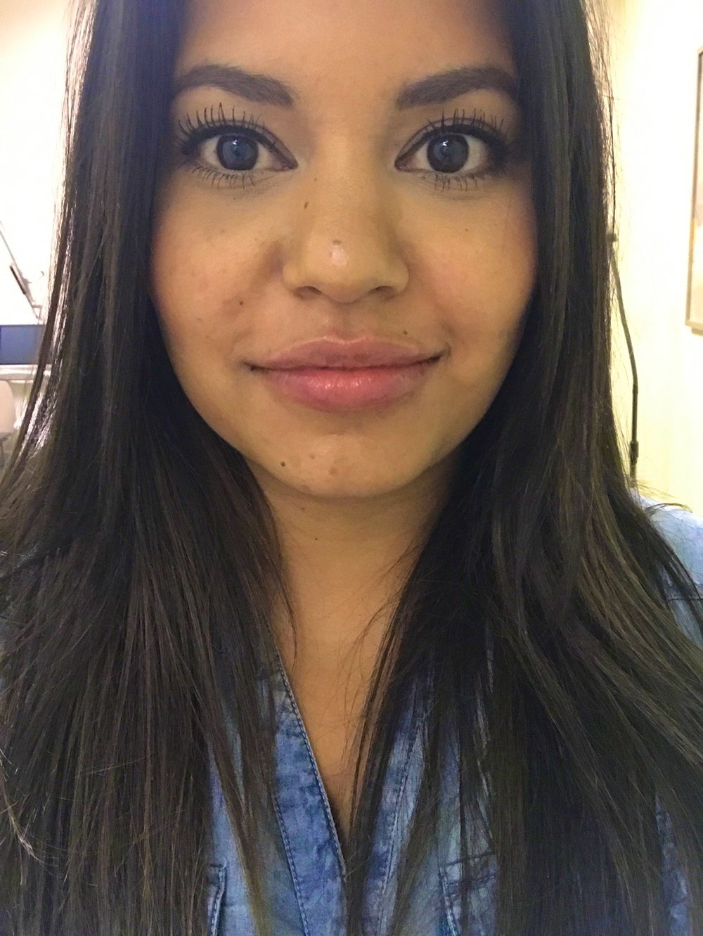 Richelle-Hedlund-Lip-Procedure-Review-Before-After-Puckers-Pumps-Blog5.jpg