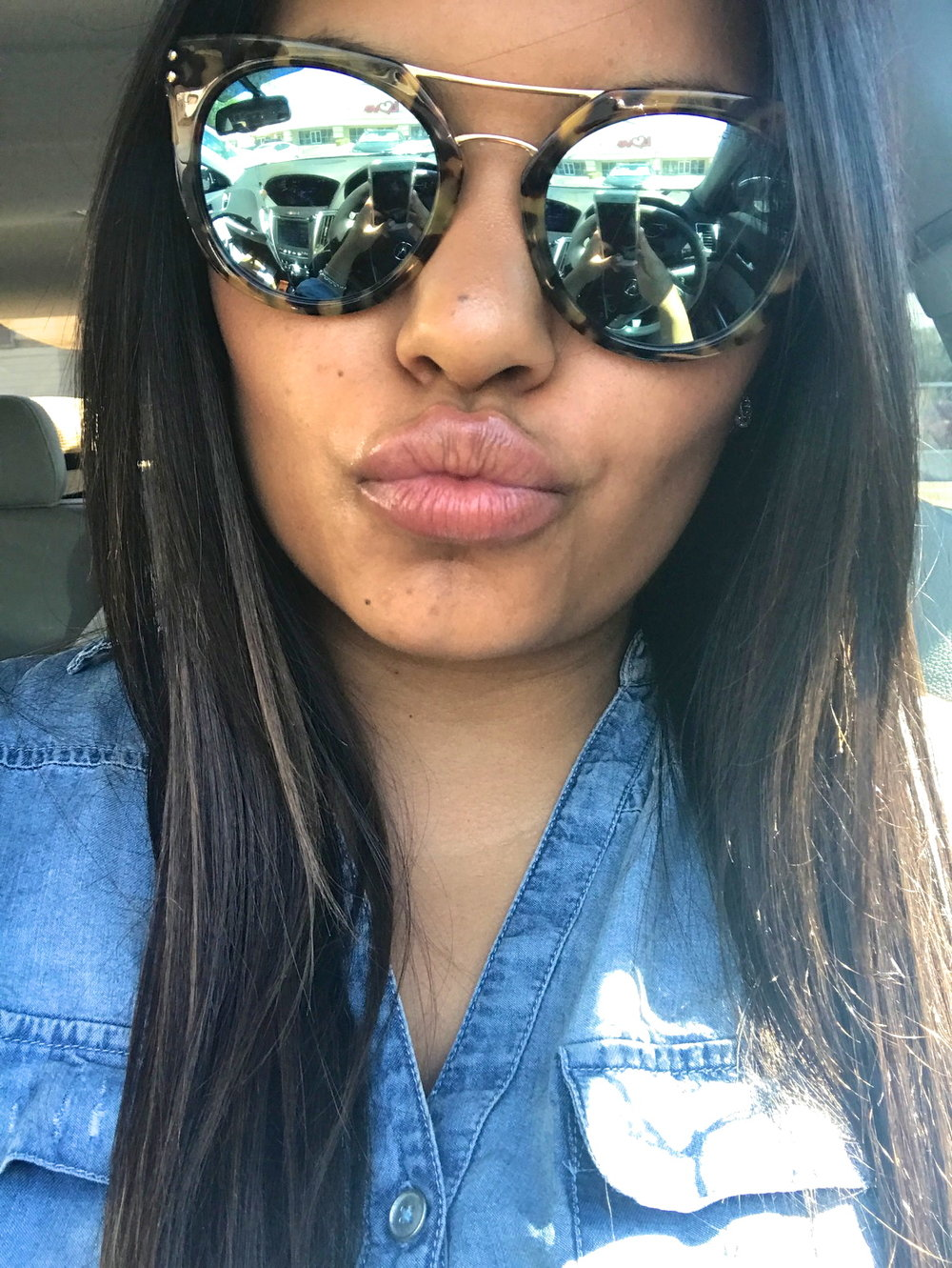 Richelle-Hedlund-Lip-Procedure-Review-Before-After-Puckers-Pumps-Blog7.jpg