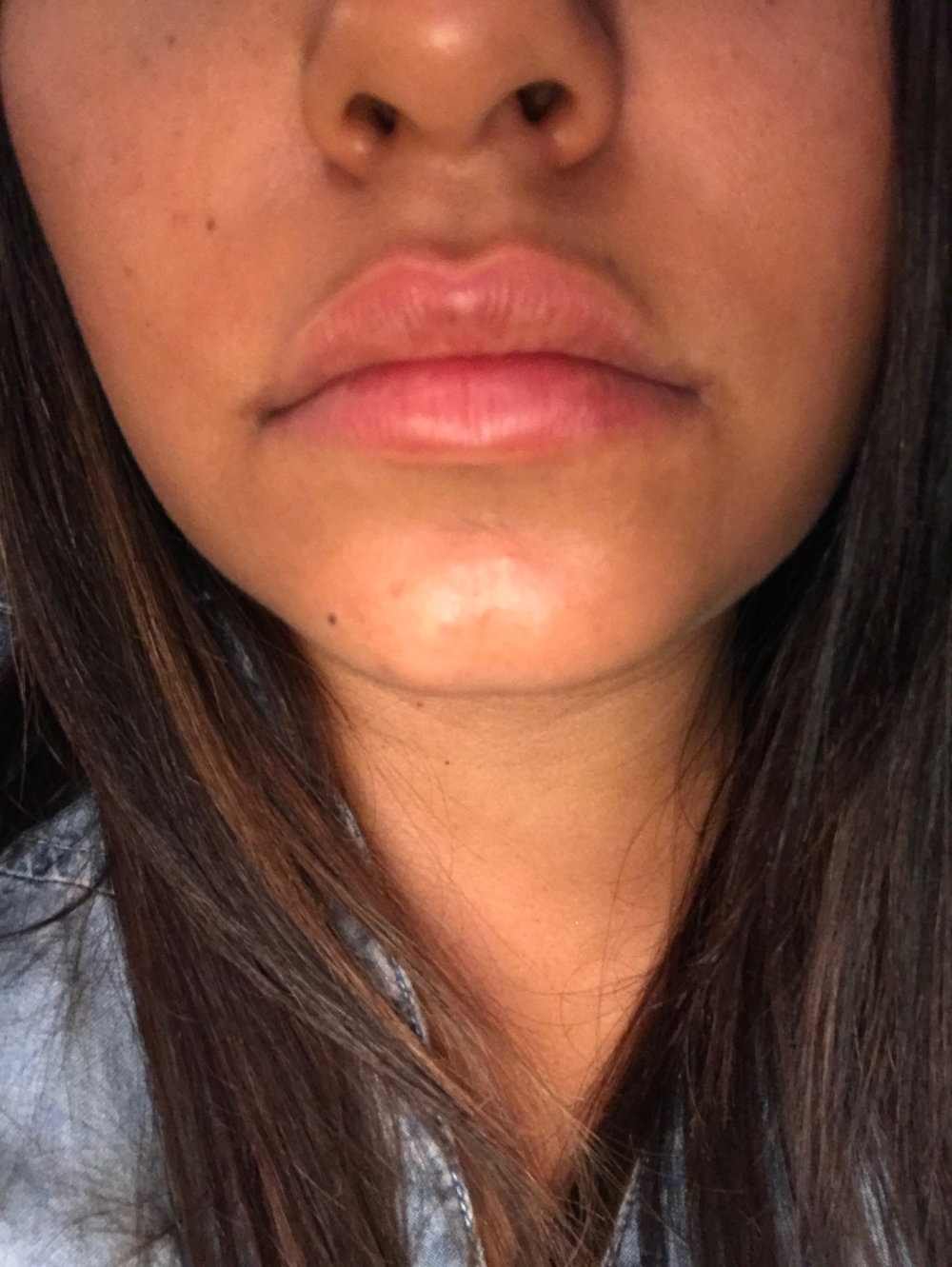 Richelle-Hedlund-Lip-Procedure-Review-Before-After-Puckers-Pumps-Blog8.jpg