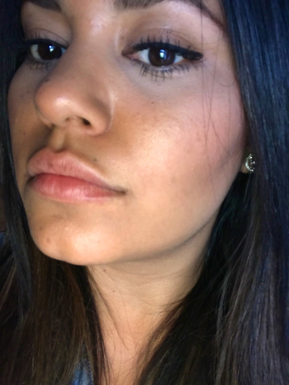 Richelle-Hedlund-Lip-Procedure-Review-Before-After-Puckers-Pumps-Blog10.jpg