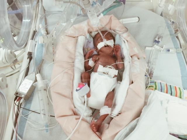 Alyssa, 23 weeks (1lb 3.2oz)