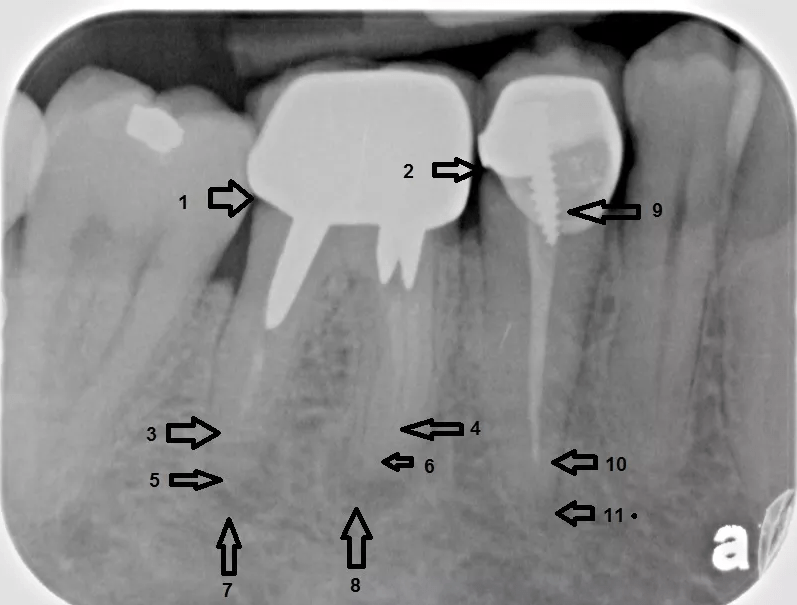 Failing, infected root canal teeth infecting the bone. -