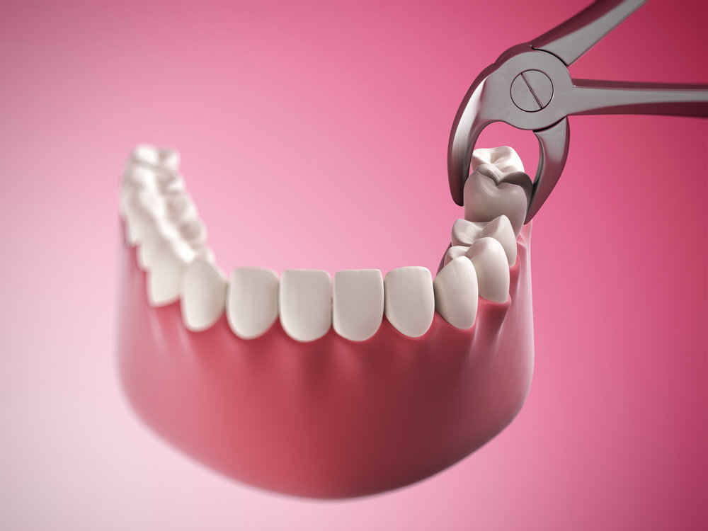 3d rendered illustration of a tooth extraction