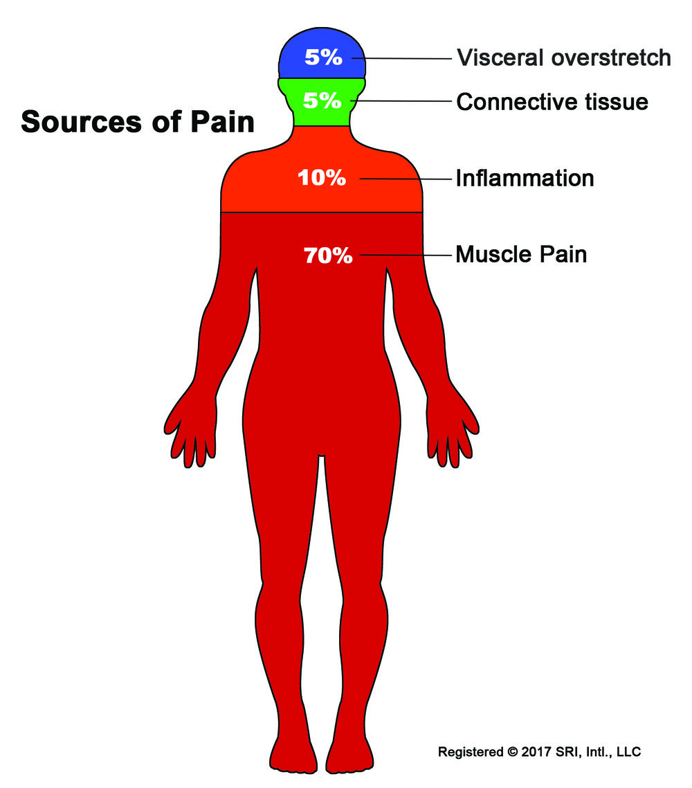 Sources-of-Pain-Body-Graphic.jpg