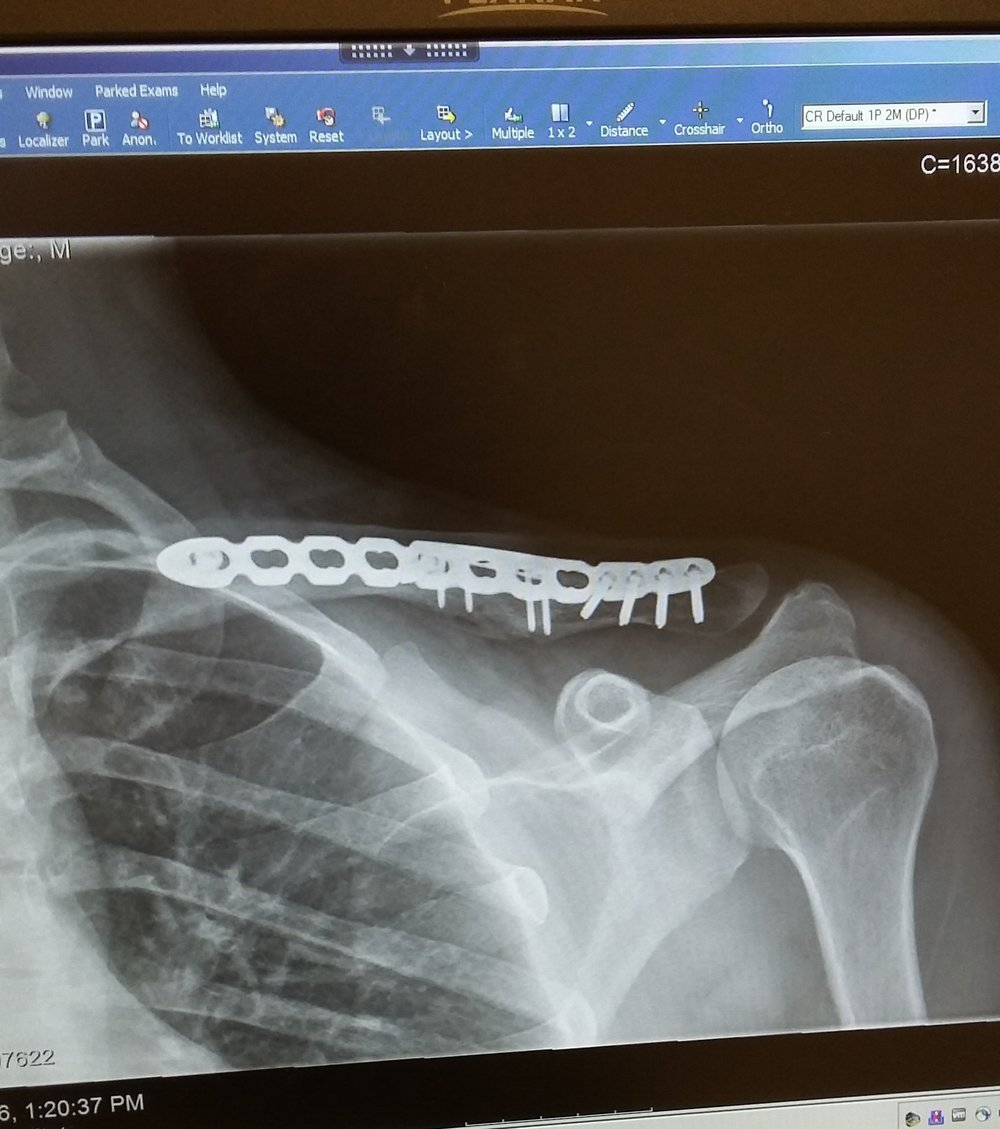 A picture of my post-surgery collarbone.