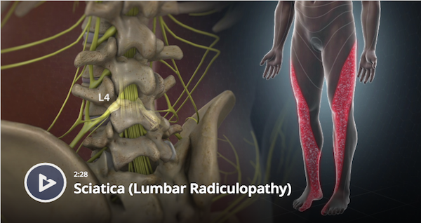 Sciatica (Lumbar Radiculopathy)