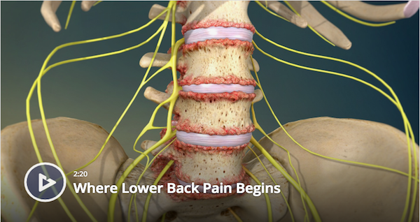 Where Lower Back Pain Begins
